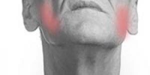 CMD- Craniomaniduläre Dysfunktion